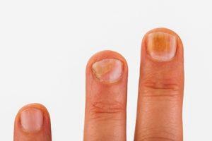 gljivice na noktima ruku liječenje